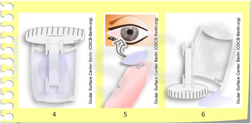OSCB-Berlin.org_(c) ENK- Erich and Nadja Knop_Contact Lenses must CLEANED and DISINFECTED_Kontaktlinsen müssen GEREINIGT und DESINFIZIERT werden 2 NEUTRALISIERUNG_30_.jpg