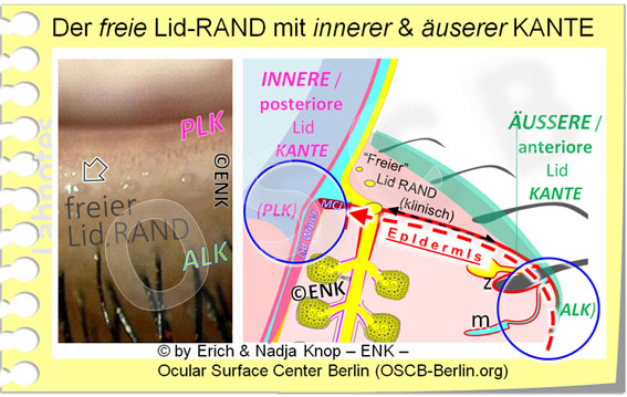 Der FREIE LIDRAND zeigt zur geöffneten Lidspalte hin. Sie wird vorne begrenzt durch die runde vordere anteriore Lidkante (ALK) und hinten durch die scharfe hintere posteriore Lidkante (PLK), die den Augapfel/ Bulbus berührt und als Lid Wiper (Lidwischer) den Tränenfilm herstellt und aufrecht hält.