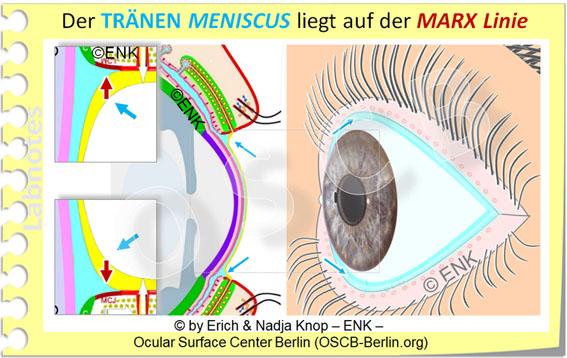 Der TRÄNENMENISKUS (blaue Pfeile in allen Schemazeichnungen) ist das deutlich verdickte ´ENDE´ des Tränenfilms, dort wo er den Lidrand berührt. Die Bildung des Tränenmeniskus (´Tränensee´), der mehr Tränenflüssigkeit enthält als der Tränenfilm selbst und im Querschnitt (Abb. links) etwa dreieckig ist, hängt mit der Oberflächenspannung zusammen. In starker Vergrößerung (Ausschnitte ganz rechts) erkennt man, dass der Tränenmeniskus auf der MARX´schen Linie liegt (rotbraune Pfeile, ganz links), die wiederum die Oberfläche der Haut-Schleimhaut-Grenze (MCJ) ist - Dies ist die vordere, erste Zone der hinteren Lidkante. Das Lid berührt mit der hinteren, zweiten, Zone den Augapfel/Bulbus - dort bildet die marginale Konjunktiva die verdickte Epithel-Lippe des Lid Wiper, der die Tränen zum sehr dünnen Tränenfilm auszieht. Die Lidränder des Auges auf der Schemazeichnung rechts sind leicht nach außen evertiert damit man den Lidrand komplett sehen kann, ganz hinten auf dem freien Lidrand liegen die Öffnungen der Meibomdrüsen, noch vor dem Tränenmeniskus.