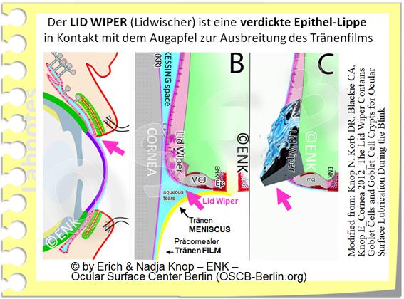 OSCB-Berlin.org_(c) ENK- Erich and Nadja Knop_Der LID WIPER (Lidwischer) ist eine verdickte Epithel-Lippe am LIDRAND zur Ausbreitung des Tränenfilms_20_.jpg