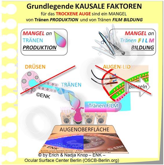 OSCB-Berlin.org_Grundlegende-KAUSALE-FAKTOREN-für-das-TROCKENE-AUGE-sind-ein-MANGEL-von-Tränen-PRODUKTION-und-von-Tränen-FILM-BILDUNG---EINFACH--NEU_20_JPG6_.jpg