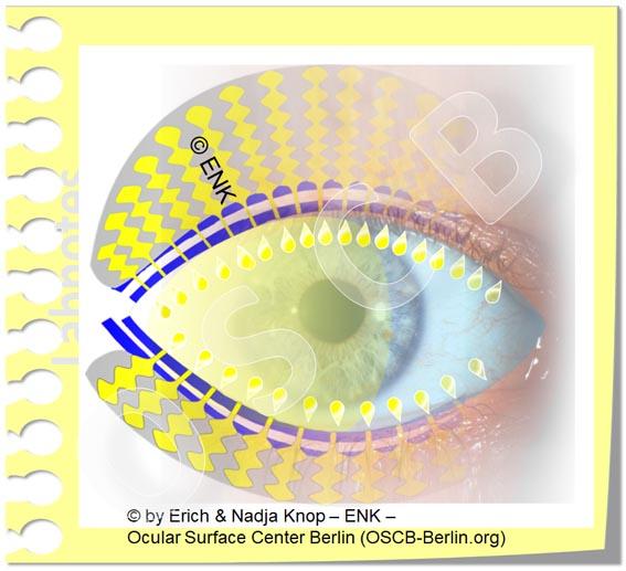 Die Meibomdrüsen in den Augenlidern produzieren Öl für den Tränenfilm
