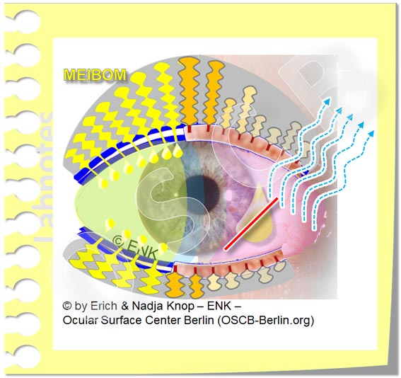 OSCB-Berlin.org, (c) ENK_Dry Eye Disease MGD_Trockenes Auge mit Meibomdrüsen Dysfunktion (MDD) und LIPIDMANGEL 2 MGD_20_.jpg