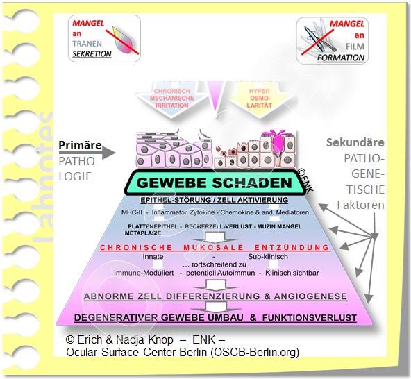 OSCB-Berlin.org, (c) ENK_Dry Eye, _Trockenes Auge_SEKUNDÄRE pathogenetische Faktoren GEWEBESCHADEN DEW238_20_.jpg