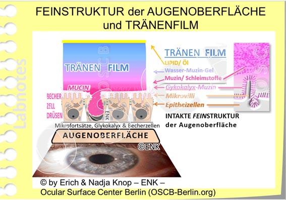 OSCB-Berlin.org_FEINSTRUKTUR-der-AUGENOBERFLÄCHE-und-TRÄNENFILM + PSE AUSSCHNITT Mikrovilli u. Muzin_20_.jpg