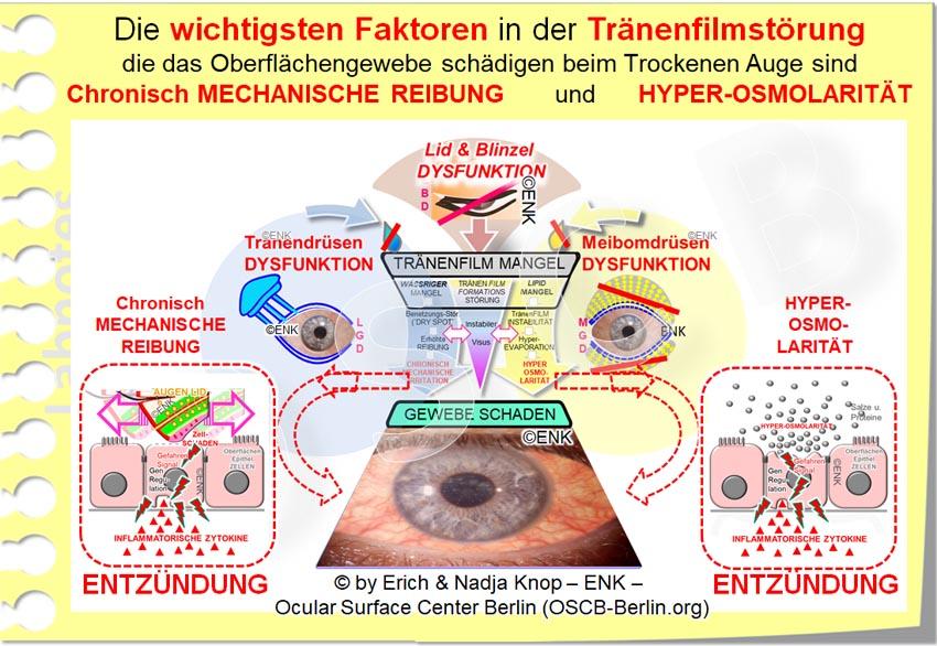 OSCB-Berlin.org_Die wichtigsten Faktoren in der Tränenfilmstörung die das-Oberflächengewebe schädigen beim Trockenen Auge sind Chronisch MECHANISCHE REIBUNG und HYPER OSMOLARITÄT_20_ALS JPG_.jpg