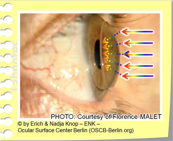 OSCB-Berlin.org_(c)ENK_Trockenes Auge, Dry Eye Disease, Contact Lens, Kontaktlinse_OPTISCHE VORTEILE der Kontaktlinse_OHNE Text_20_.jpg