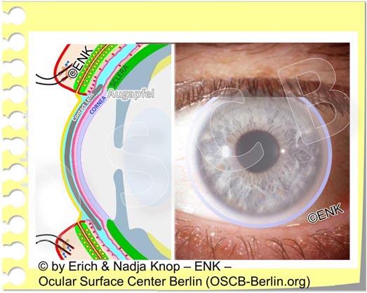 OSCB-Berlin.org_(c)ENK_Trockenes-Auge,-Dry-Eye-Disease,-Contact-Lens,-Kontaktlinse__Augenoberfläche und KONTAKTLINSE_20 OHNE Text_.jpg