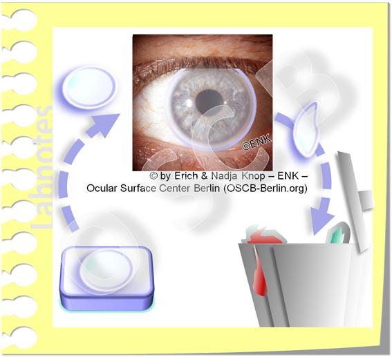 OSCB-Berlin.org, (c) ENK_Dry Eye Disease, Contact Lenses_Trockenes Auge_EINMAL KONTAKTLINSEN, TAGESLINSEN_20_.jpg