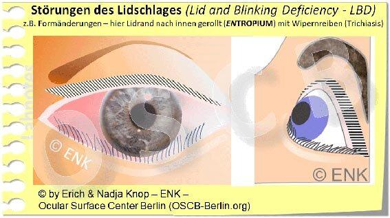 Rollung des Lidrandes nach innen (Entropium) mit Reiben der Wimpern auf dem Auge