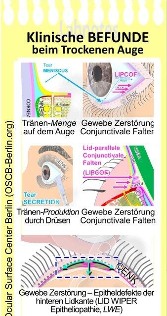 OSCB-Berlin.org_Klinische+BEFUNDE+beim+Trockenen+Auge.jpg