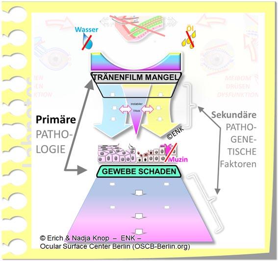 OSCB-Berlin.org, (c) ENK_Dry Eye, _Trockenes Auge, PRIMARE Pathologie + SEKUNDÄRE pathogenetische Faktoren MIT KAUSALEN Faktoren oben + DRÜSEN-KREISEN Sek. LEER DEW241_20_.jpg