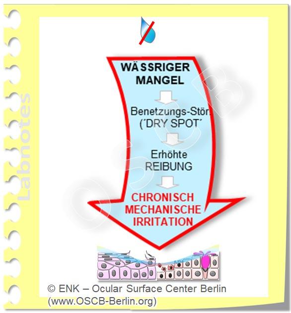 OSCB-Berlin.org, (c) ENK_Dry Eye, _Trockenes Auge_TearfIlm Deficiency Tränenfilm Mangel, WÄSSRIGER MANGEL auf PFEIL ISOLIERT_OHNE+Bilder_20_DEW270_.jpg