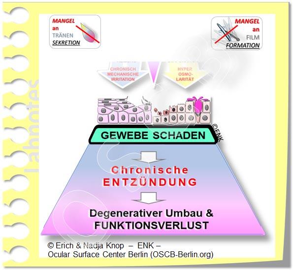 OSCB-Berlin.org, (c) ENK_Dry Eye, _Trockenes Auge, SEKUNDÄRE pathogenetische Faktoren - KAUSALE Faktoren_DEW241_20_.jpg