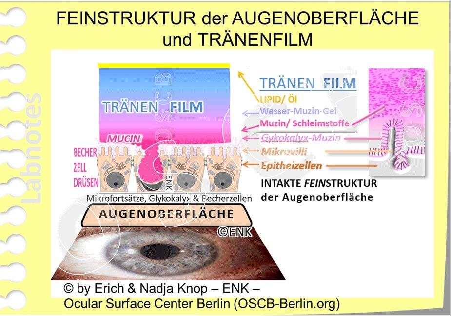 OSCB-Berlin.org_FEINSTRUKTUR-der-AUGENOBERFLÄCHE-und-TRÄNENFILM +  PSE AUSSCHNITT Mikrovilli u. Muzin.jpg