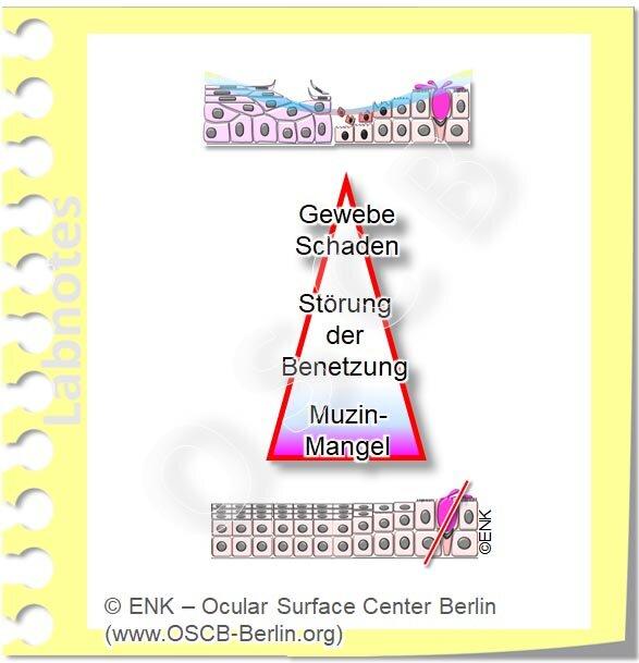OSCB-Berlin.org, (c) ENK_Dry Eye, _Trockenes Auge_TearfIlm Deficiency Tränenfilm Mangel, MUZIN-MANGEL auf PFEIL ISOLIERT_OHNE+Bilder_20_DEW270_NEU_.jpg