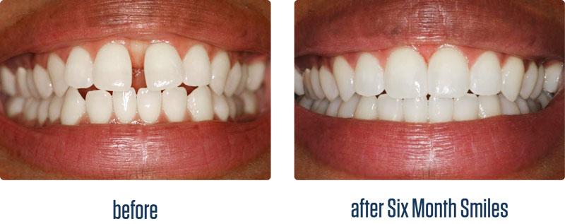 six-month-smiles-example.jpg