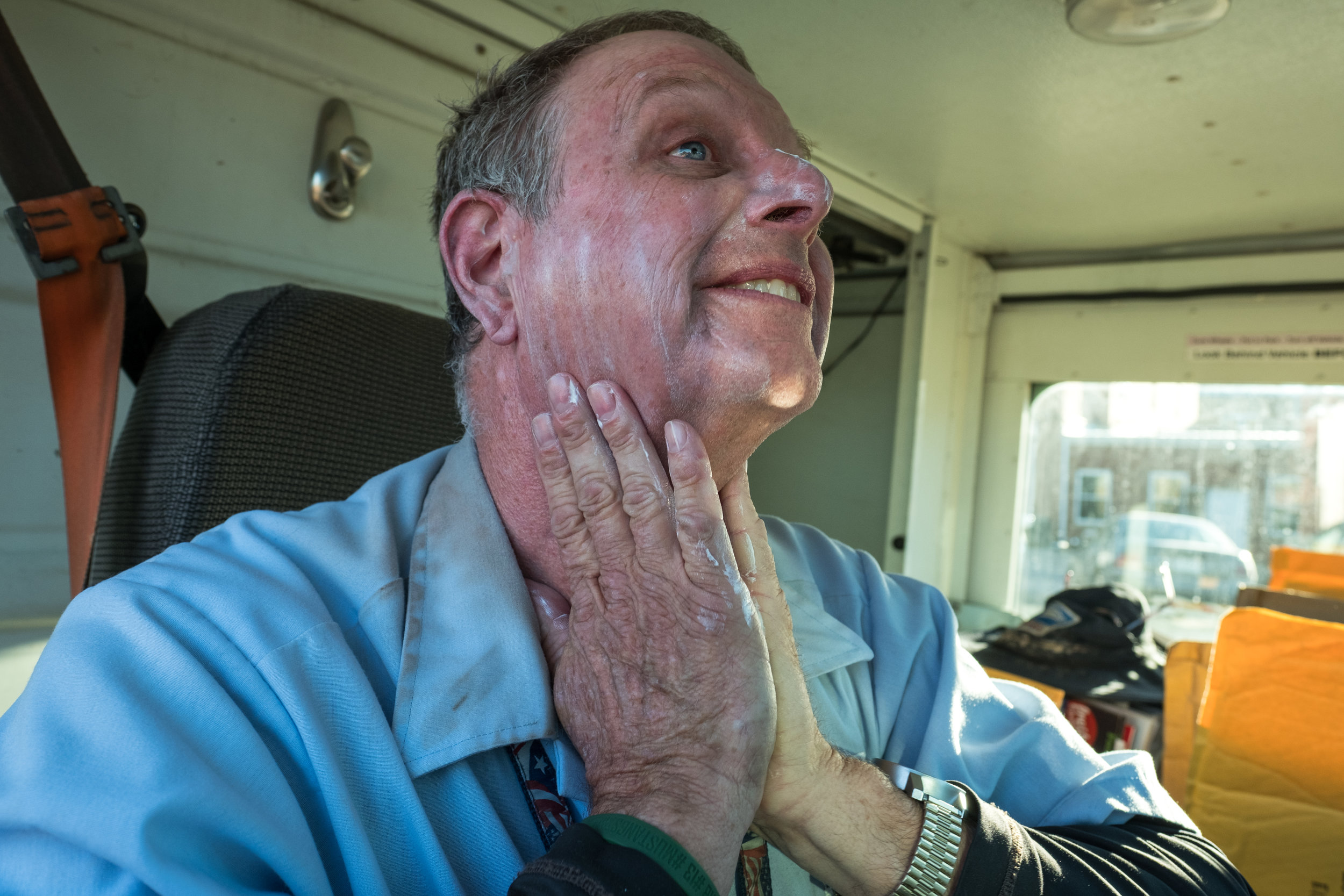 Greg's dermatologist recommends he don sunscreen every day and wear long sleeves. Greg has had pre-cancerous spots removed due to excessive sun exposure.