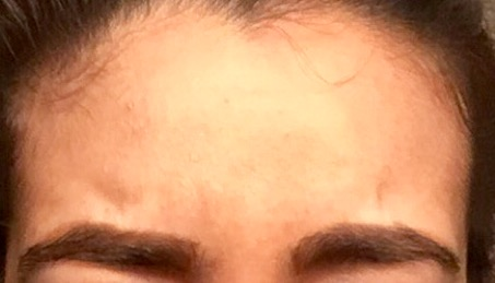 My frown line change two days after treatment