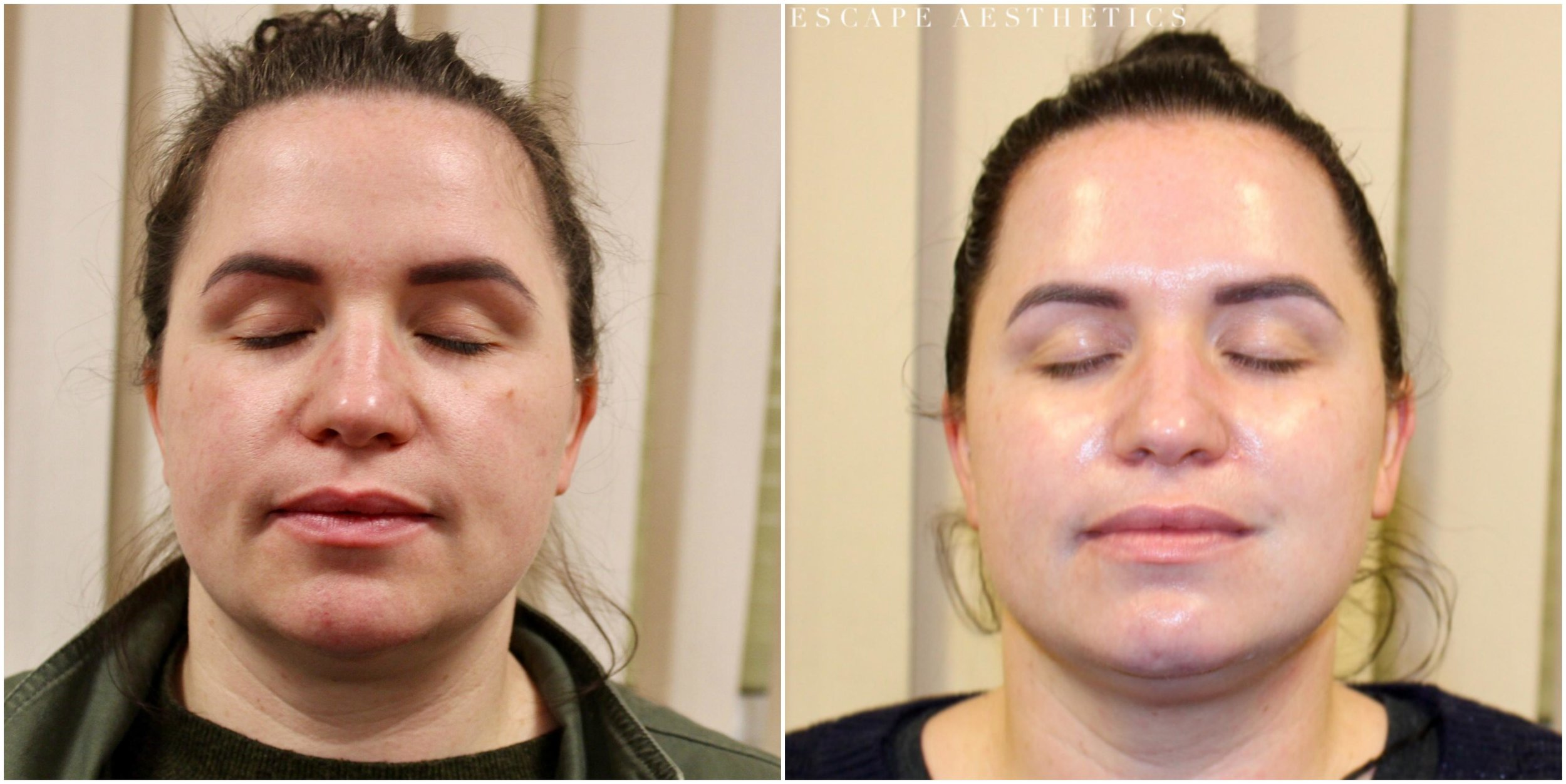 Chemical Peel Before and After, Escape Aesthetics