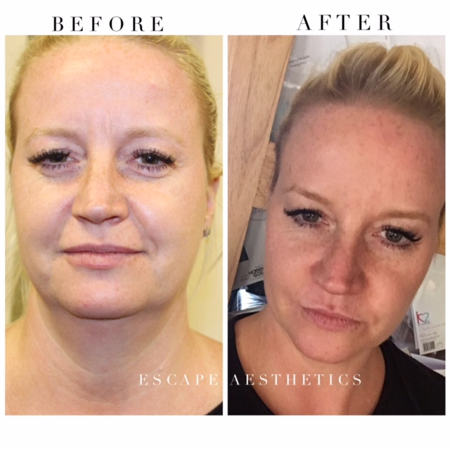 Nose to Mouth - Dermal Filler: Before and After, Escape Aesthetics