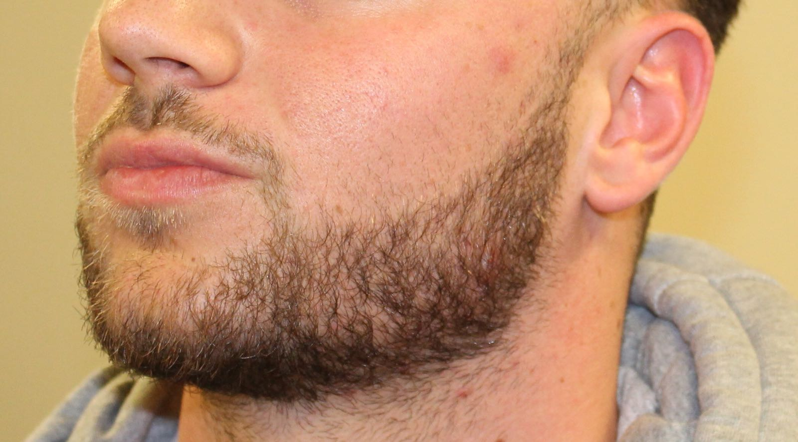 After Treatment: Teeth Grinding & Jawline Slimming