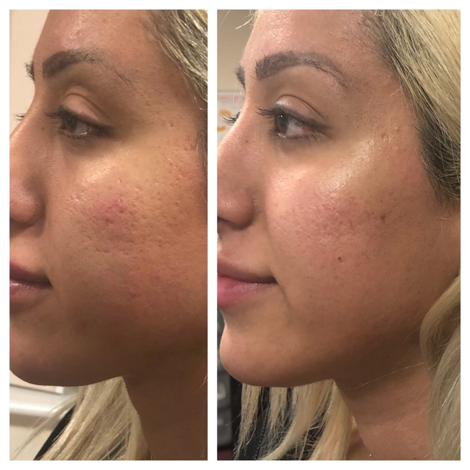 Cheek Fillers Before & After