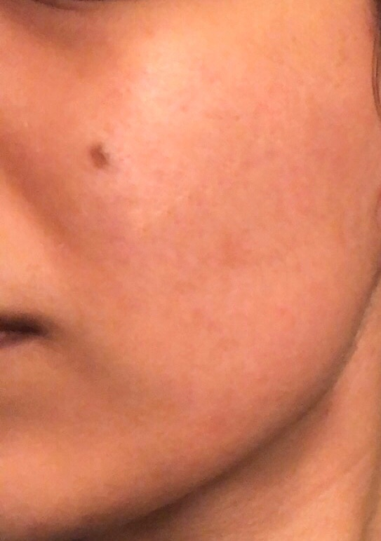 After AlumierMD (Left Cheek)