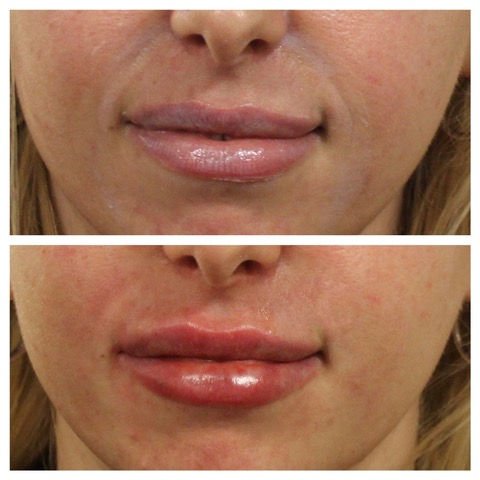 Before & After Smile Lines, Dermal Treatment