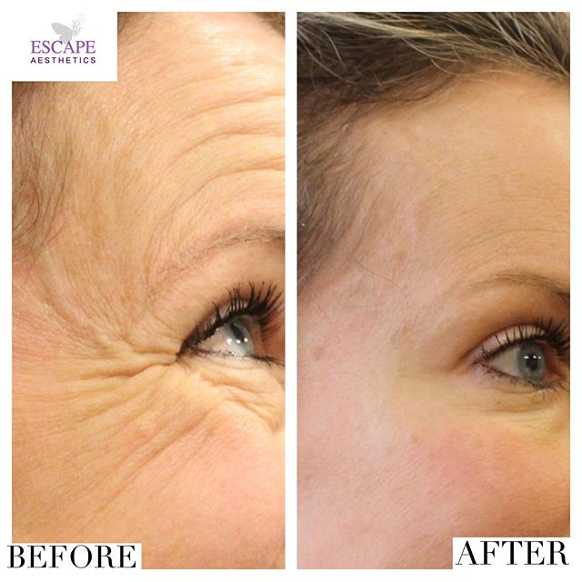 This lovely client was very nervous about having her first ever botox treatment. As many, she had heard lots of worrying media stories but was put at ease from her consultation 💖 She put her trust in us and decided to have 3 areas of Botox- forehead lines, frown lines and crows feet. — Amazing transformation 2 weeks later, same expression- no top up needed. 💉💉 — Worried about having your first non-surgical treatment?  We're certified & accredited by @savefaceuk find us at:- www.saveface.co.uk ✅ . . . . #botox #lips #lipinjections #lipfillerslondon #juvederm #celebrity #beauty #aeshetics #nonsurgical #instadaily #instagood #skinclinic #skin #beautiful #botoxtreatment #clinic #aestheticnurse #doctor #nurse #follow #tag #tranformation #botoxlondon #cheekfiller #beautytips #beautybloggers #blogger #chemicalpeel #skintreatment