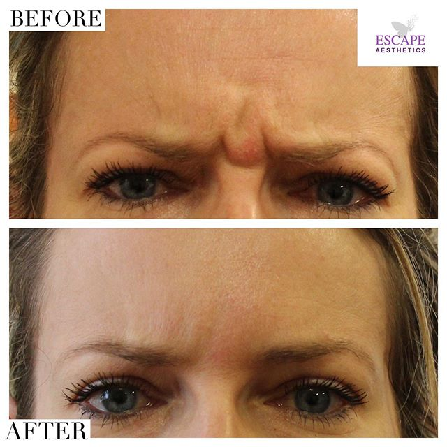 Those stubborn frown lines! 💉 Smooth & wrinkle free after botox treatment for this area 🙌🏼 — Minimum pain ✅  Quick & easy treatment ✅  Non-surgical ✅  Results lasting 6-12 months ✅ — Book your consultation & treatment at: www.escape-aesthetics.com @savefaceuk . . . . . #beautybloggers #skintreatment #botox #instagood #follow #beforeandafter #beautytips #blogger #medical #nurse #doctor #aesthetics #makeup #celebrity #botoxlondon #lipfillers #lipinjections #botoxface #botoxforehead #teartroughfillers #fillers #instadaily #tagsomeone #facemasks #beautyful #beautycare #kyliejenner #kimkardashian #skin #skincare