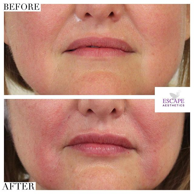Amazing instant results for our lovely clients first time visiting us 💖 (Redness is completely normal and subsides after 1-2 hours) — LOWER FACE NON SURGICAL REJUVENATION 💉 Juvederm fillers lasting up to 18 months used for the smile lines, marionette lines and lip border to give our client a fresh, natural and rejuvenated look. — Book your consultation to create a bespoke treatment plan 👇🏼 www.escape-aesthetics.com . . . . . #antiaging #blog #skincareroutine #hyperpigmentation #skincaretips #botoxface #fillers #dermalfillers #lipfillers #beautiful #beauty #beautybloggers #doctor #aesthetics #nurse #instagood #instadaily #tagsomeone #makeup #juvederm #lipfillers #lipinjections #beforeandafter #transformation #skin #love #happy #botox #smilelines #nasolabialfolds