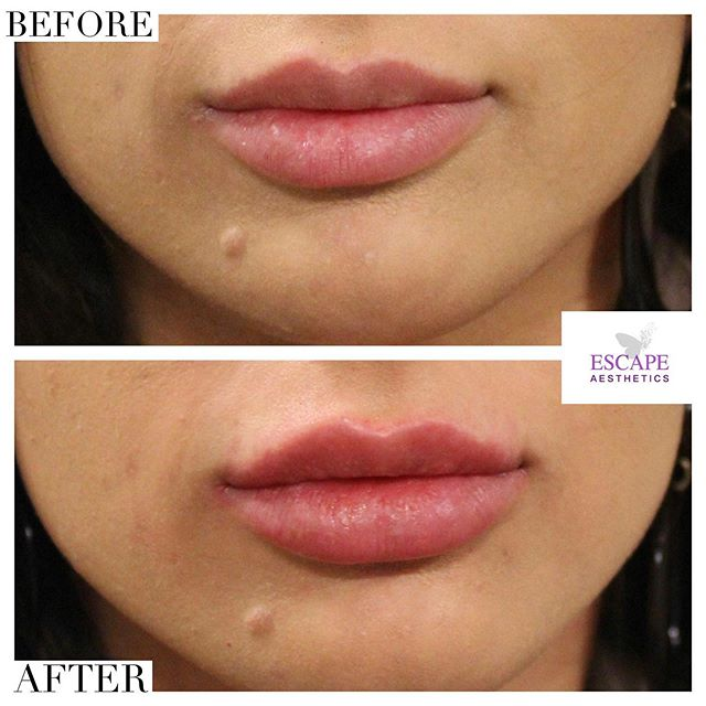 ✅ Natural, subtle top up using Juvederm ultra 2 0.5ml. — ✅ Minimum pain using VIBRATA by @simonourianmd1. — ✅ Results lasting 6-12 months. — We are accredited by @savefaceuk - Find us when you search for your certified practitioner 🌟  Book your consultation & treatment at: www.escape-aesthetics.com . . . . . #lipinjections #lipfillers #lipfillerslondon #lips #transformation #lipenhancement #fillers #dermalfillers #beauty #beforeandafter @lipfillerscollective @juvedermuk