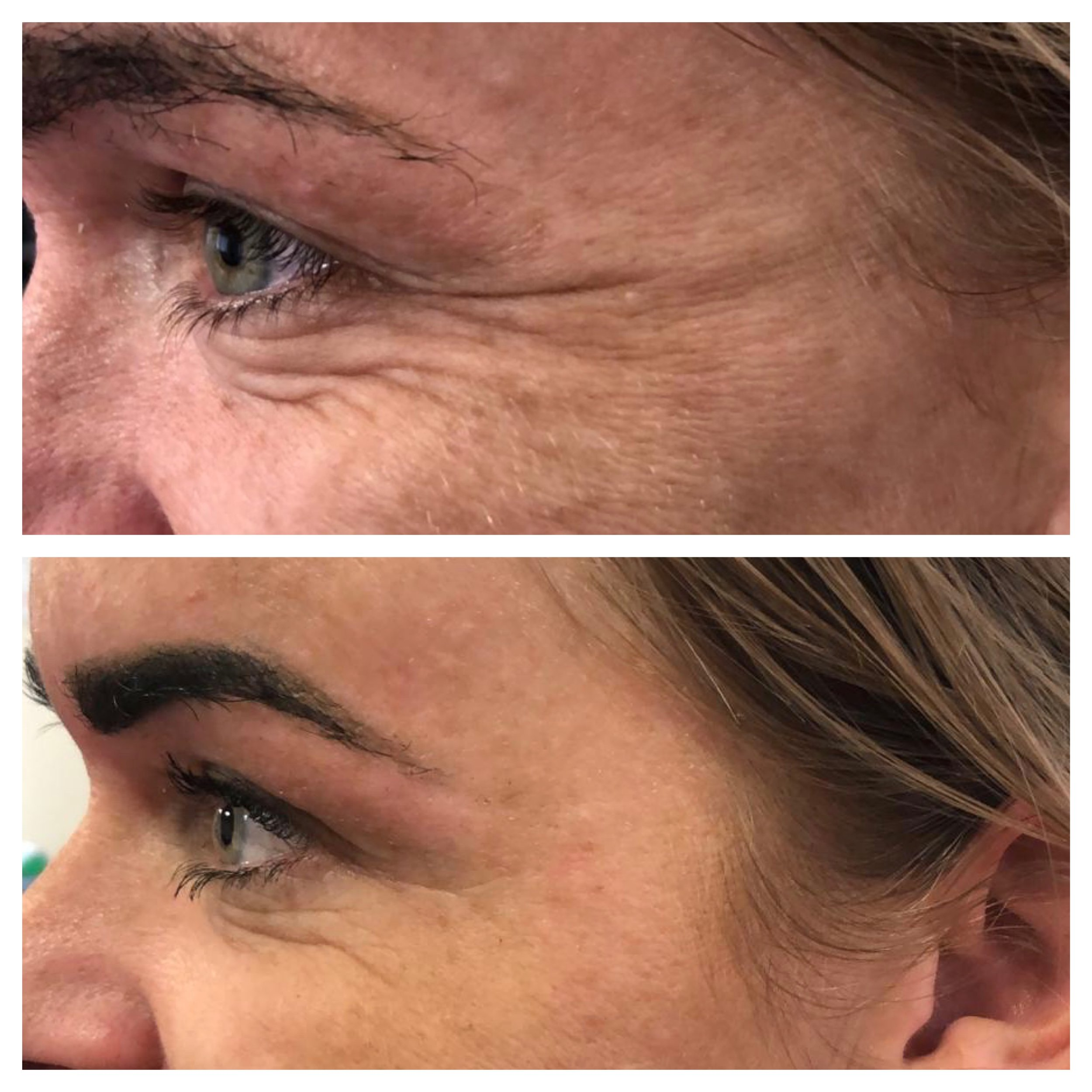 Before & After Botox Treatment for the Crows Feet (lines around the eyes)