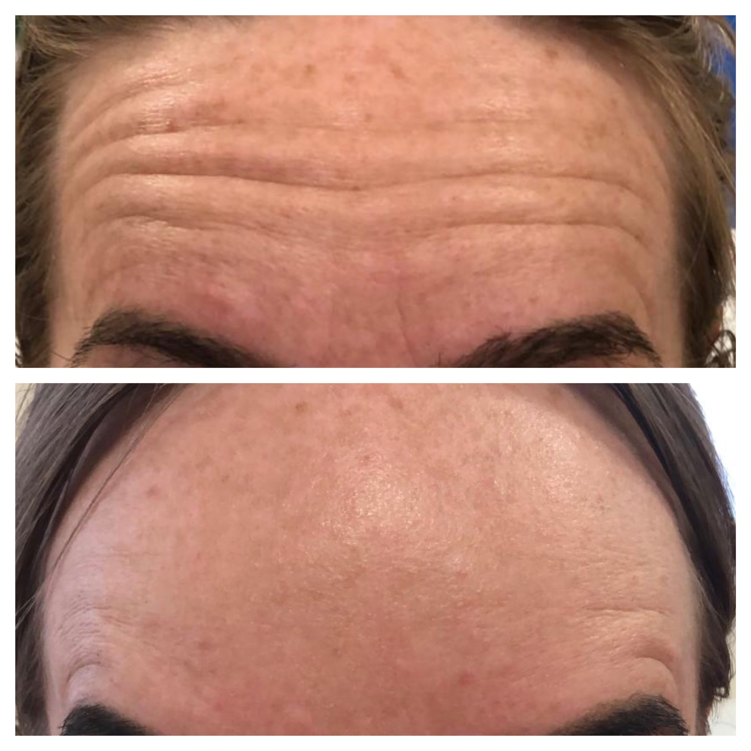 Before & After Botox Treatment for the Forehead Lines