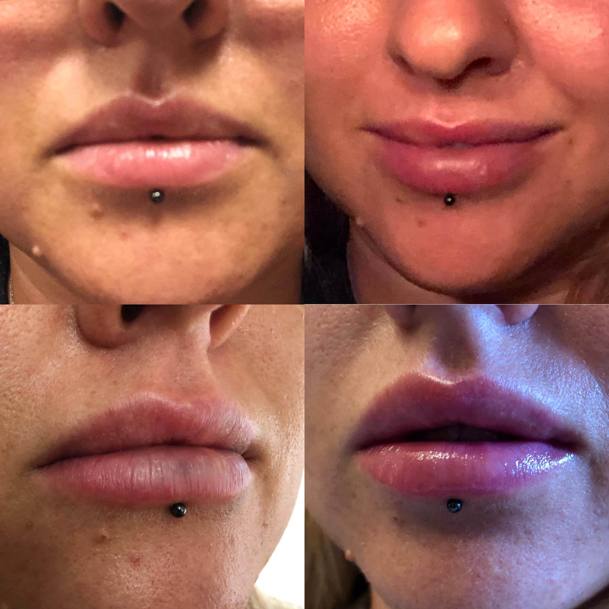 The process of lip filler from no filler, 0.5ml filler and 1.0ml