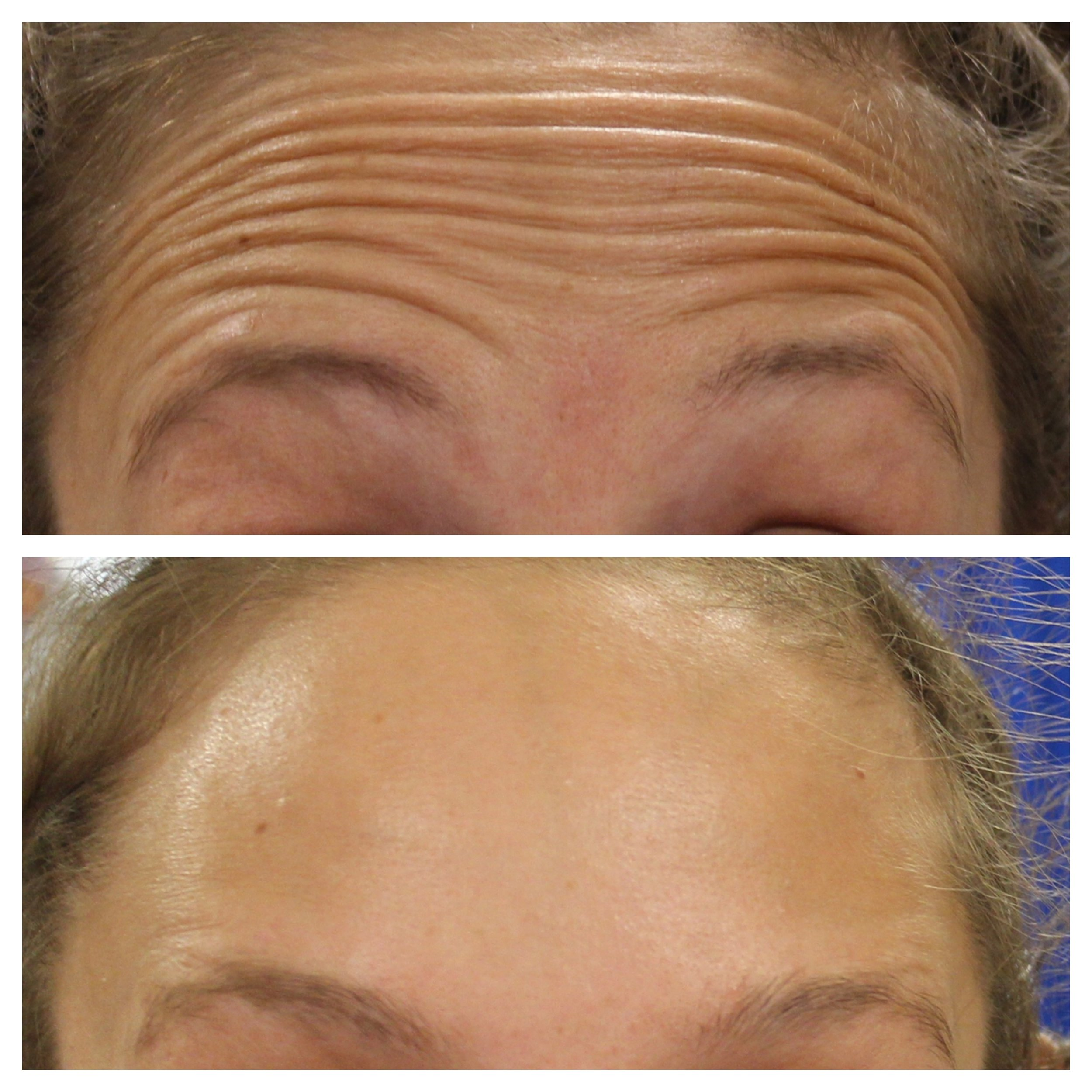Before and one week after anti-wrinkle treatment for the forehead lines