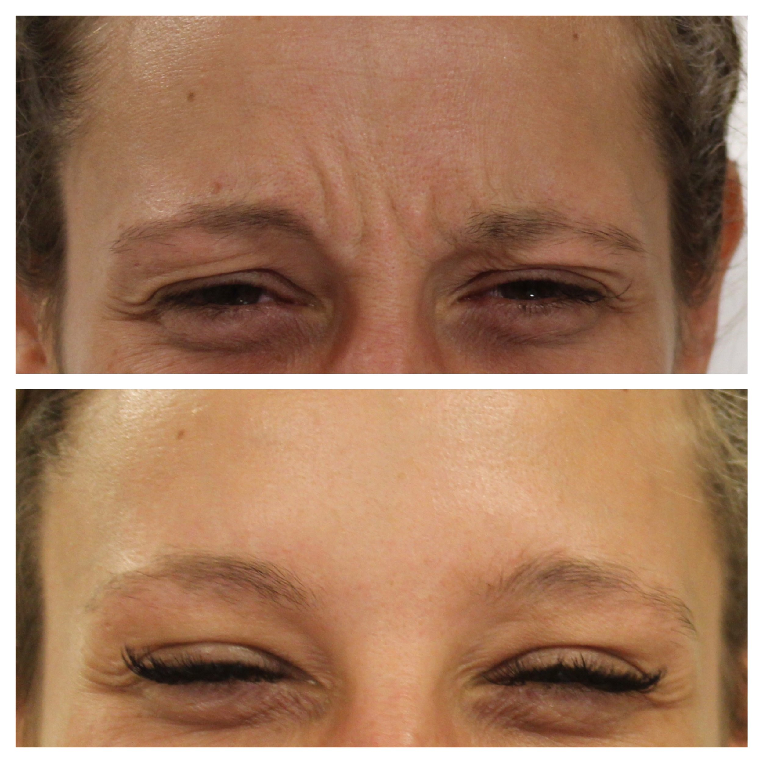 Before and one week after anti-wrinkle treatment for the frown lines