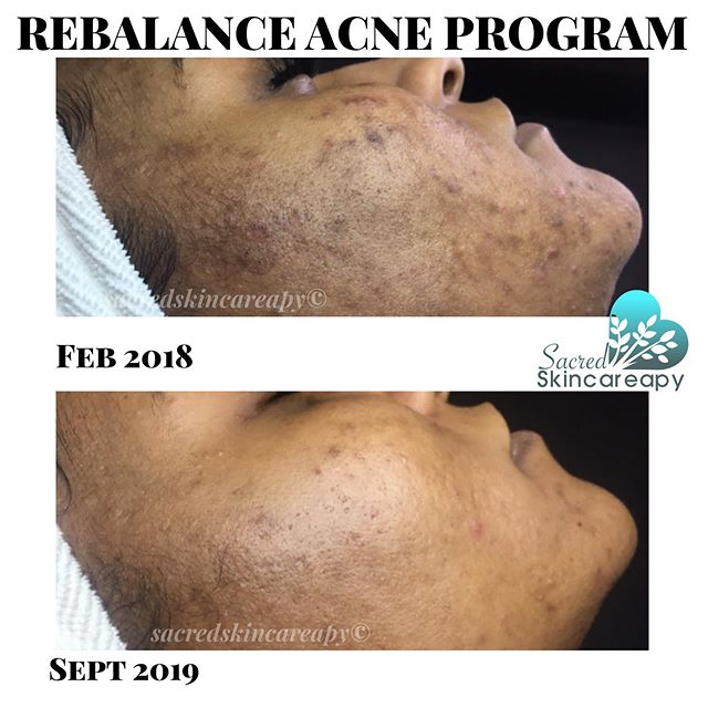 Yes! So thrilled at the progress this beauty is making! Buh bye hyperpigmentation! You're on your way to being a faded memory! (See what I did there?) 😉😁
