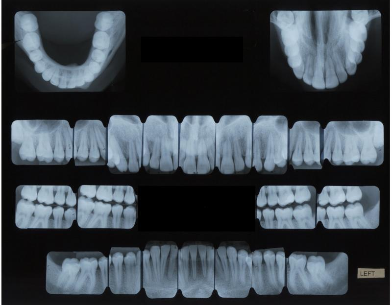 FMX: Full mouth X-rays taken my a licensed maxillofacial technician giving patients a more comfortable experience.