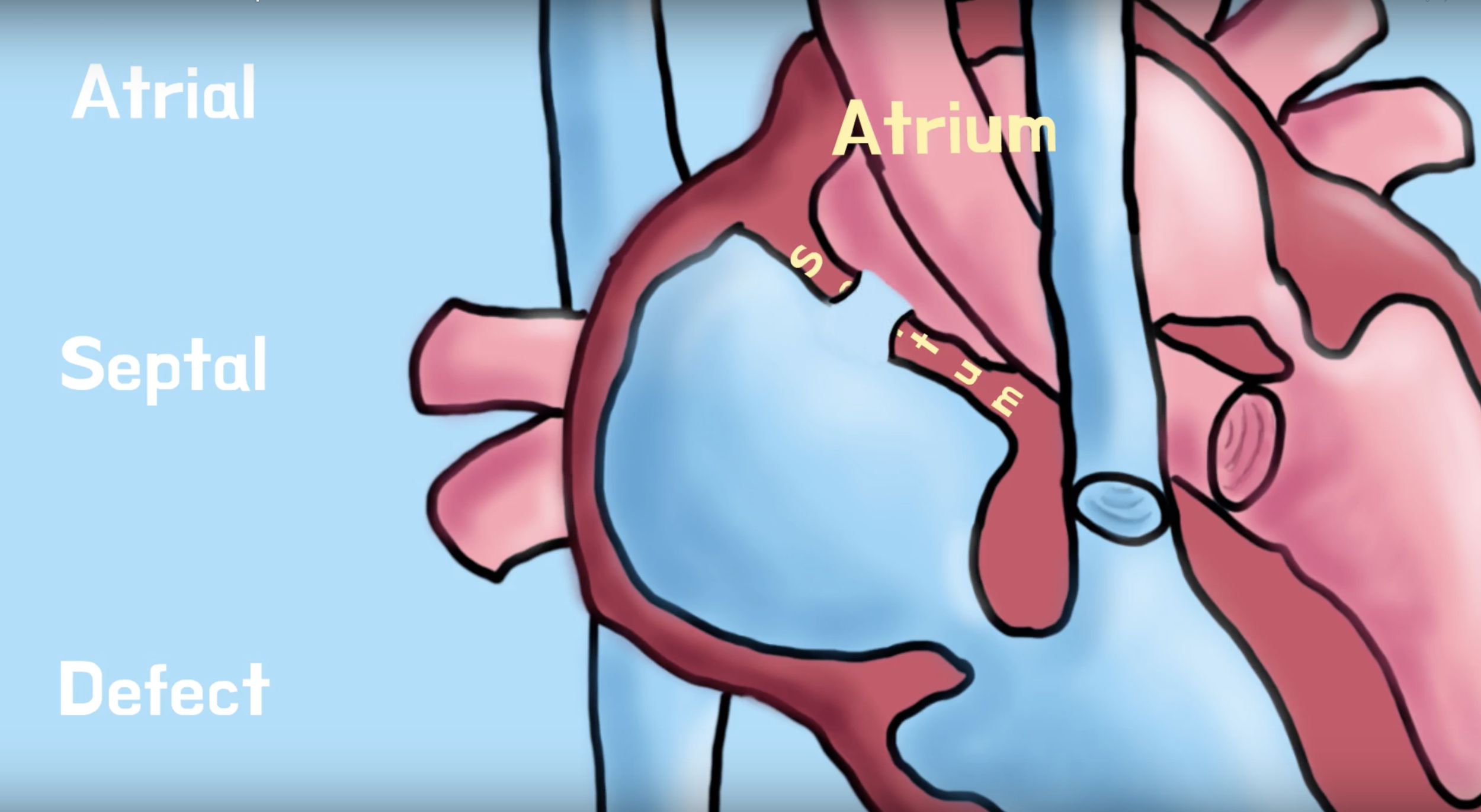 ASD - An ASD, or Atrial Septal Defect, can sound really confusing but it's actually pretty simple. Afi and Zozo will tell you all about it in this short video!