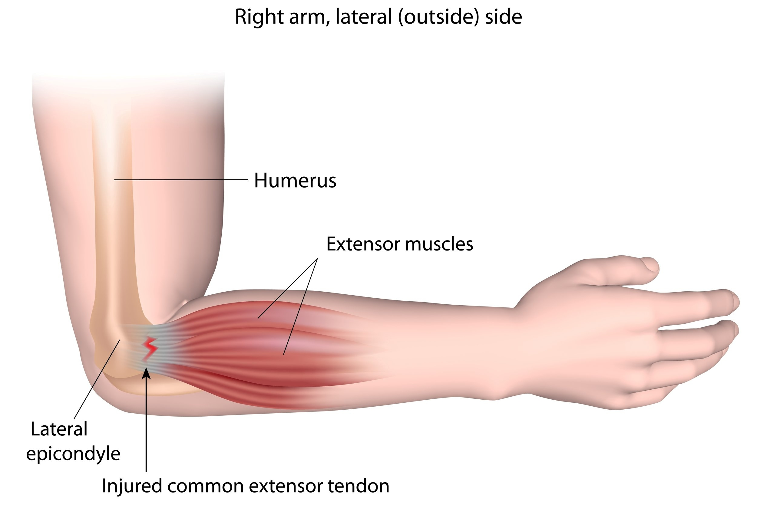 "Tennis elbow, or ""lateral epicondylitis"", is condition causing pain along the outside of the elbow. The muscles that extend the wrist and open the fingers insert into a portion of the bone on the outside of the elbow called the ""lateral epicondyle"". Small tears of the muscle at its insertion site (the tendon) is a common cause of pain in the area that is experienced when lifting or grasping objects."