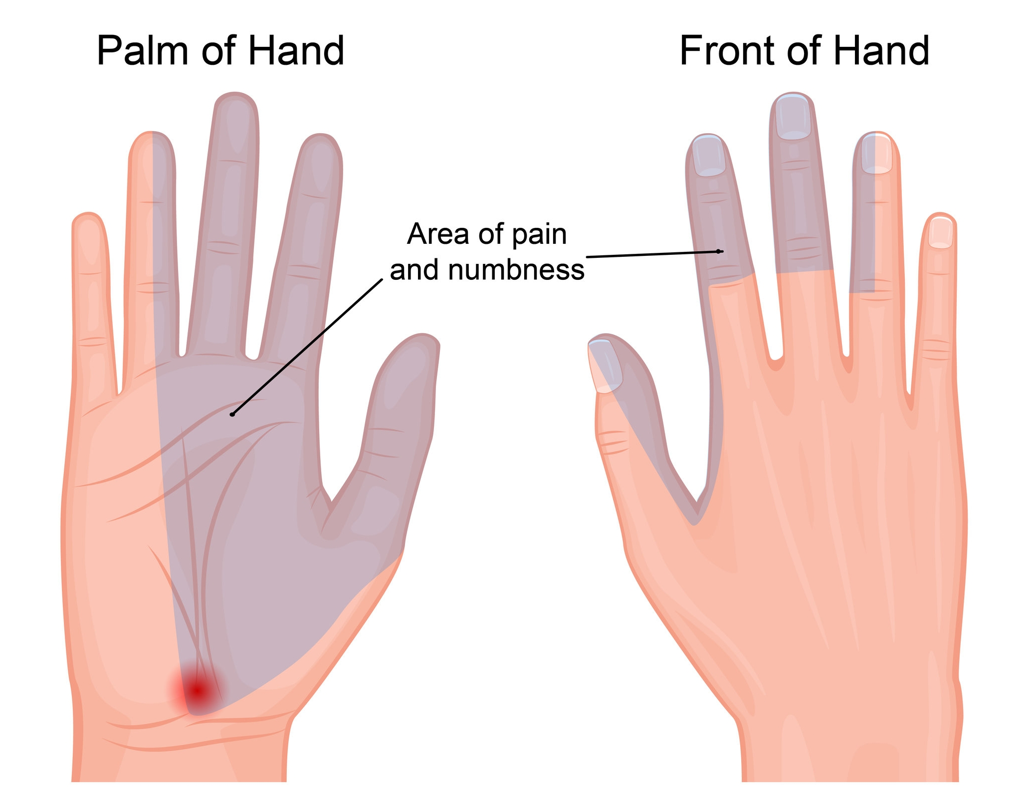 AreaArea of pain and numbness in hand that is caused by carpal tunnel