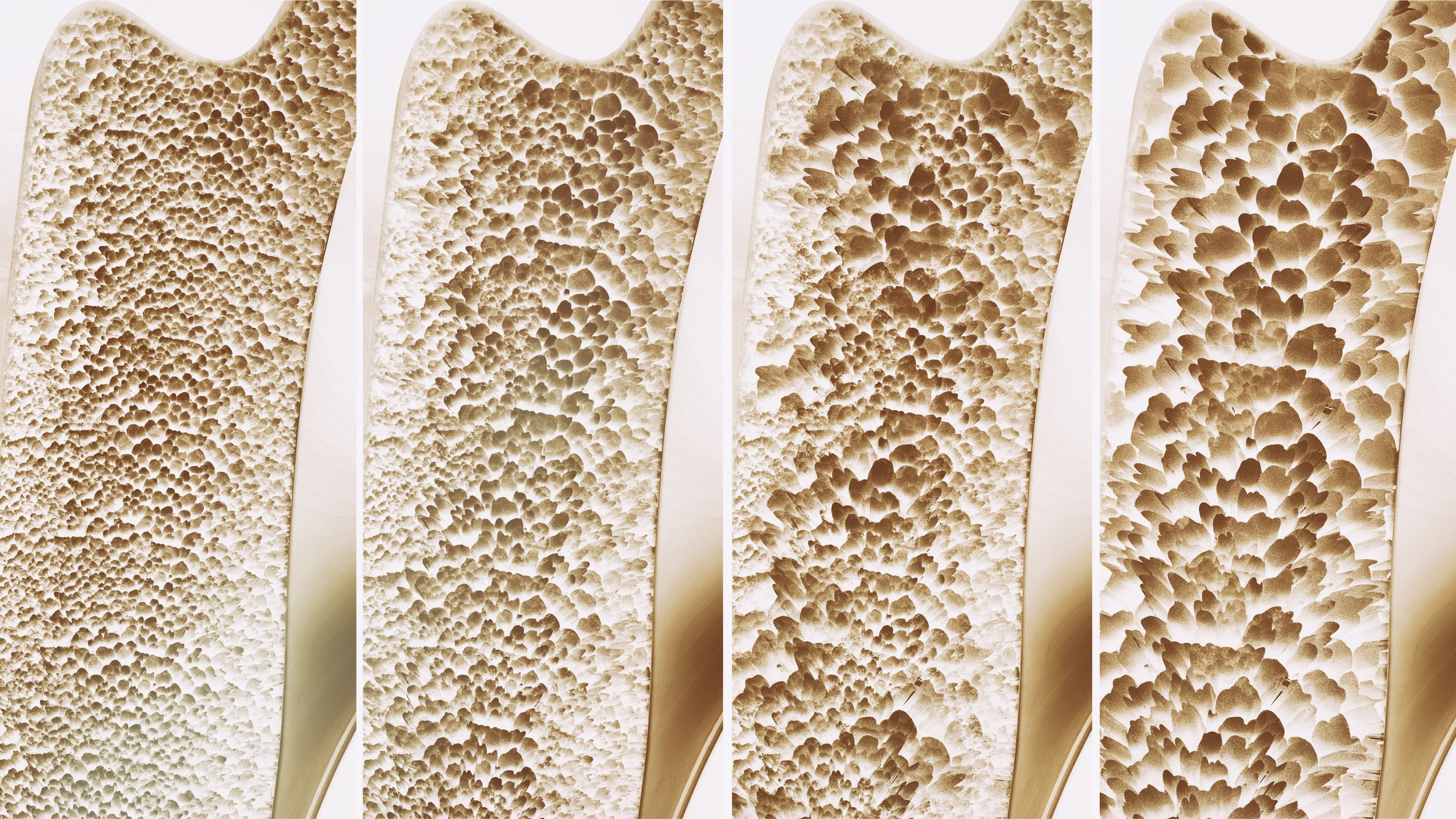 Healthy bone (left), osteopenia (middle images), osteoporosis (right)