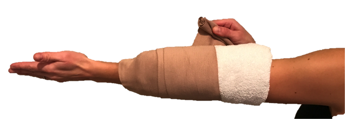 Keeping the elbow straight while sleeping minimizes tension on and irritation of the ulnar nerve. A homemade splint can be made with a towel loosely wrapped around the elbow and held in place with an ace bandage or tape.