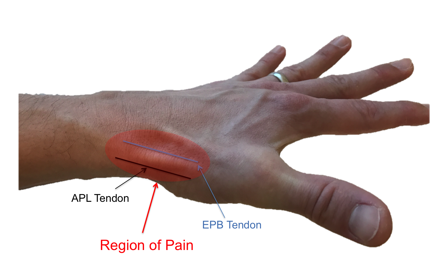 Region of pain experienced with de Quervain syndrome