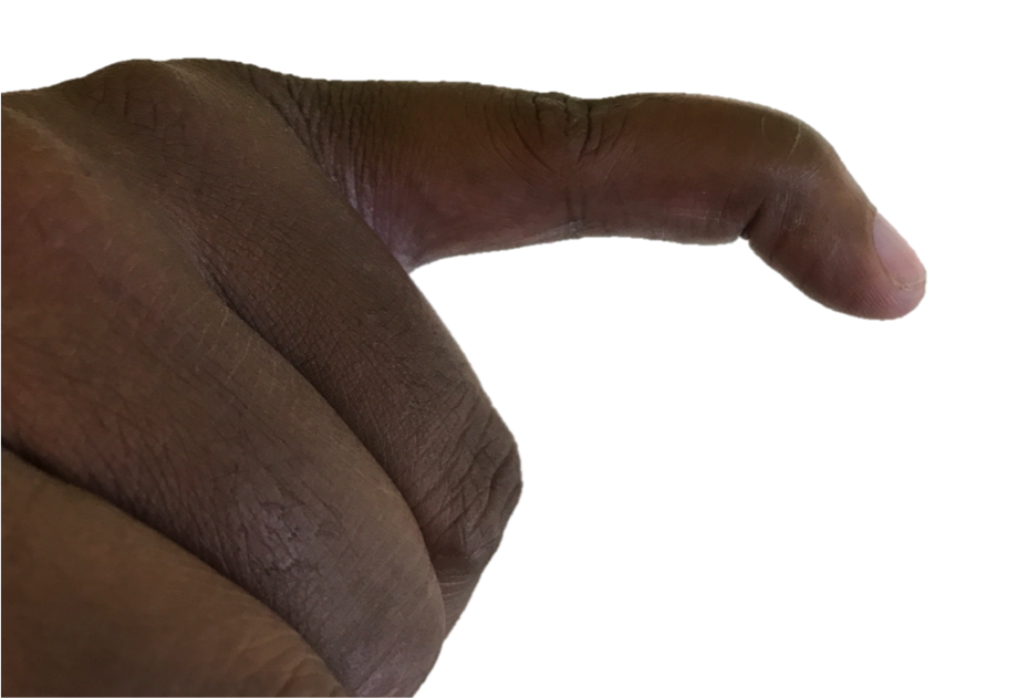 A mallet finger is a deformity of the fingertip resulting in an inability to fully extend, or straighten, the finger tip.