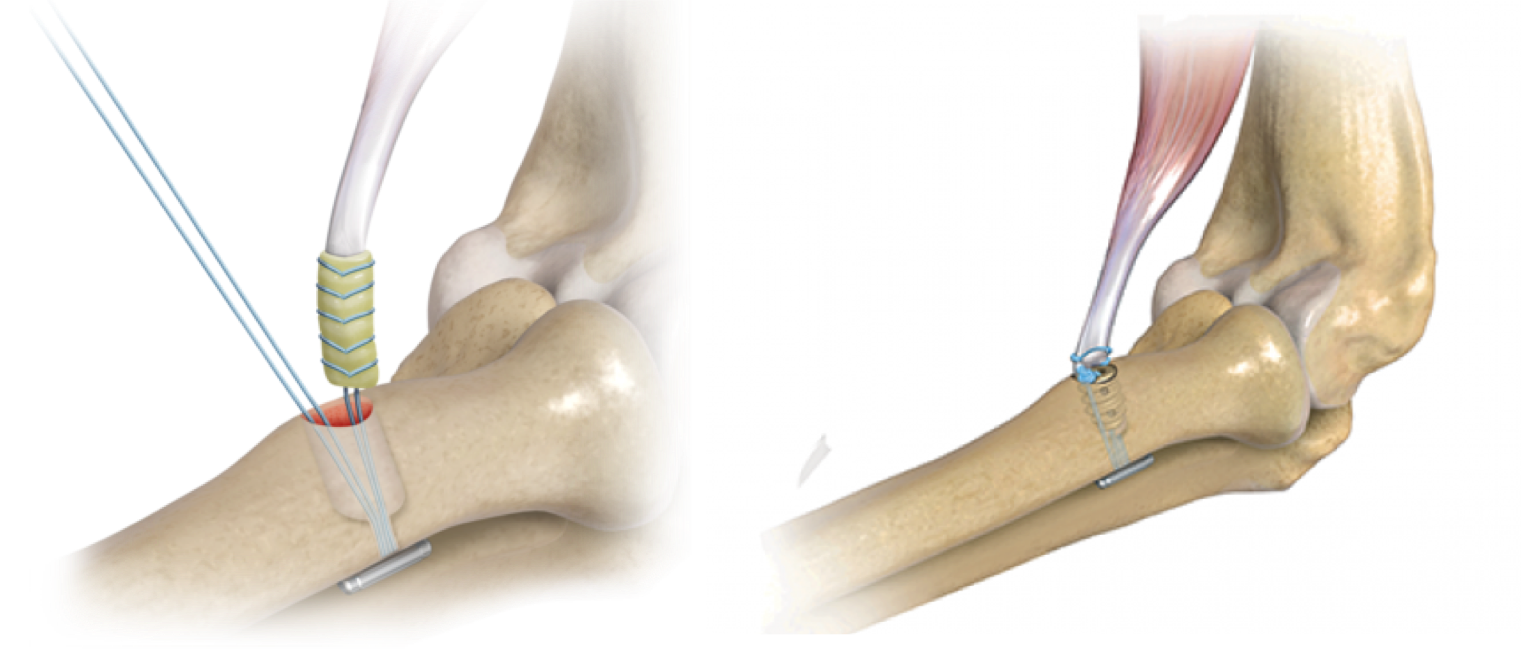 Schematic of biceps tendon repaired back to bone with suture and screw. Image from  Arthrex .