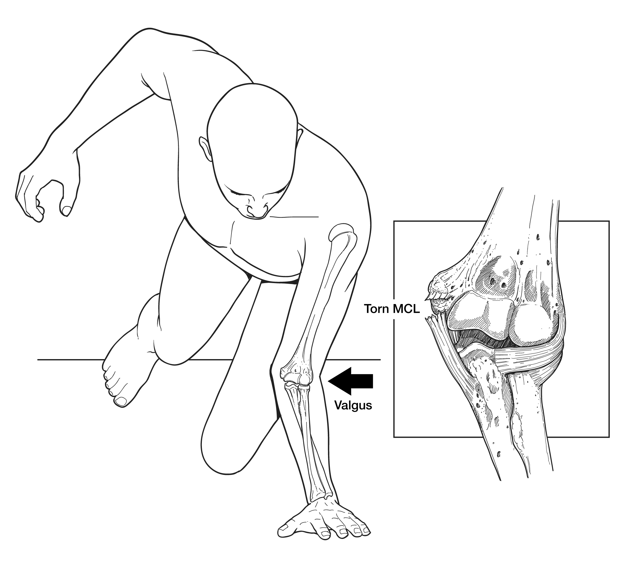 Falling onto an outstretched arm can result in tearing of the elbow's collateral ligaments. If the tear is severe enough, the elbow joint may subsequently dislocate