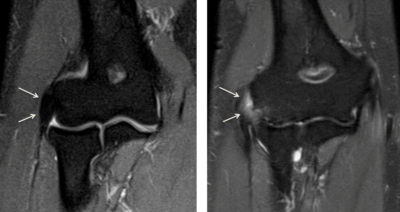 Left:  MRI of a normal elbow - the typical appearance of the extensor tendon (white arrows) insertion is a black line attaching to the bone   Right:  MRI of an elbow with lateral epicondylitis - the tendon has torn off of the bone. Fluid and scar tissue (white on MRI- white arrows) are interposed between the end of the tendon and the bone. An abnormal attachment results in pain along the outside of the elbow with use of the hand and arm.